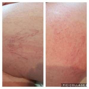 Thread vein treatments