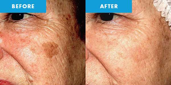 cryotherapy before & after pigmentation