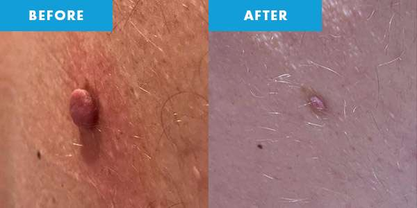 cryotherapy before & after skin tag