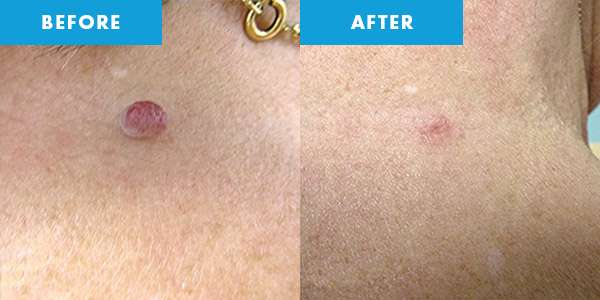 cryotherapy before & after skintag
