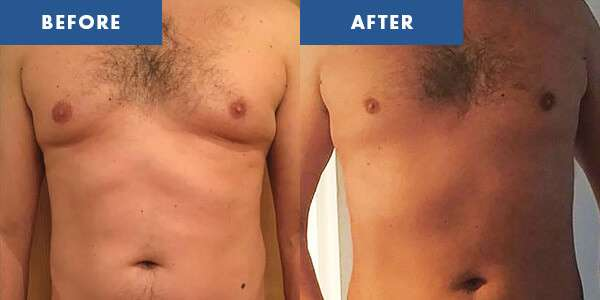 LipoContrast Before & After 1