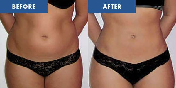LipoContrast Before & After 2