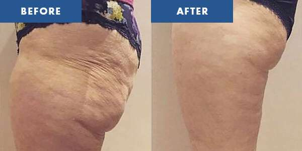 LipoContrast Before & After 3
