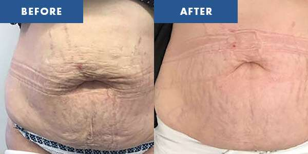 LipoContrast Before & After 4