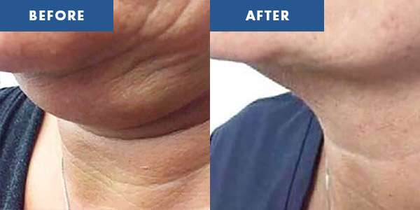 LipoContrast Before & After 5