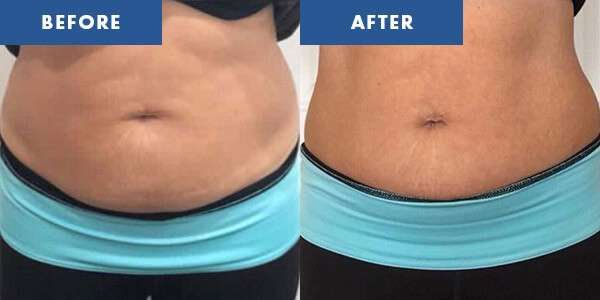 LipoContrast Before & After 8
