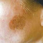 CryoTherapy Pigmentation