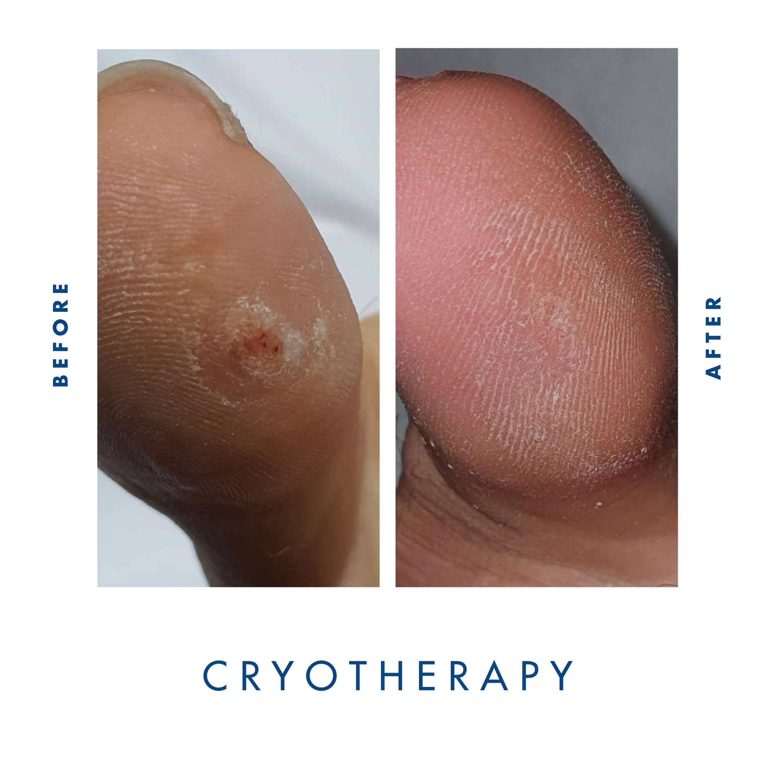 Cryotherapy Verrucae treatment